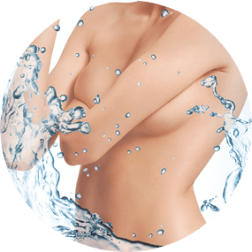 Breast augmentation with Activegel
